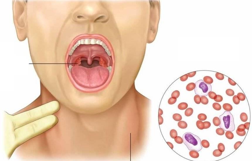 Герпесная ангина у детей – как проявляется заболевание? эффективные методы лечения