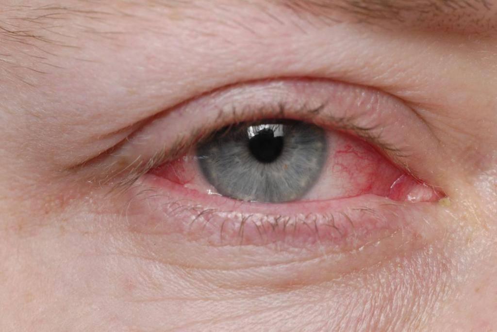 Почему болит веко глаза