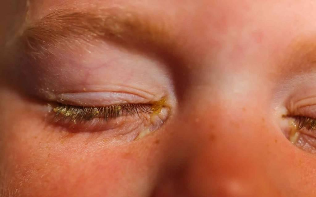 Гноятся и болят глаза после бани