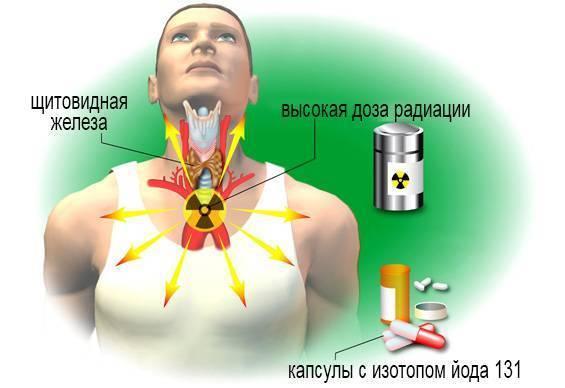 Лечение щитовидной железы радиоактивным йодом в москве стоимость