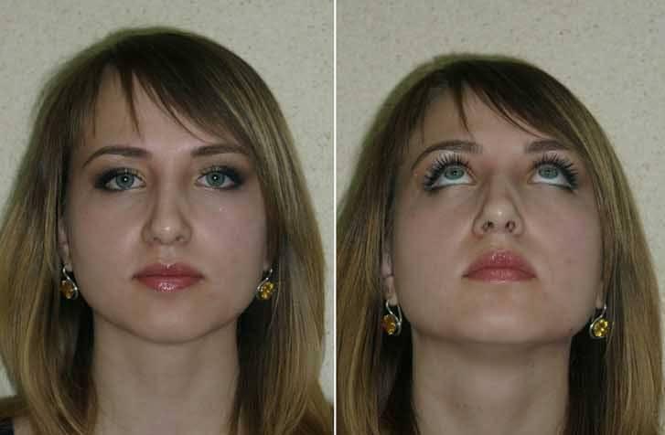 как исправить кривой нос