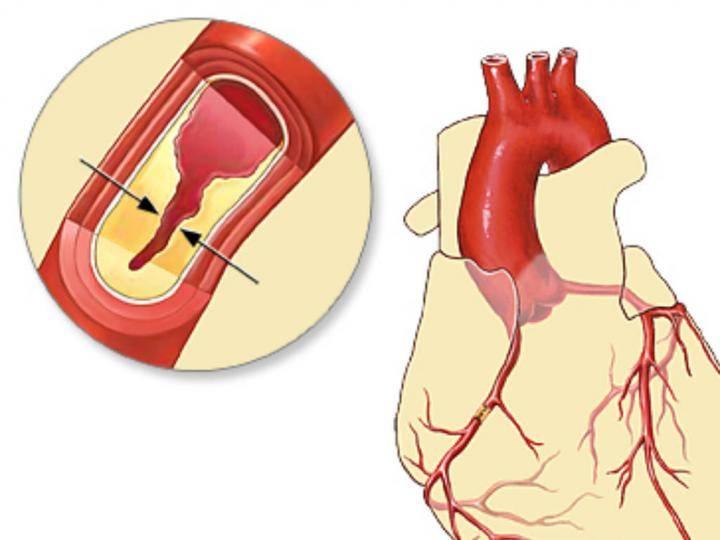 Атеросклероз коронарных артерий — симптомы заболевания, методы диагностики и лечения