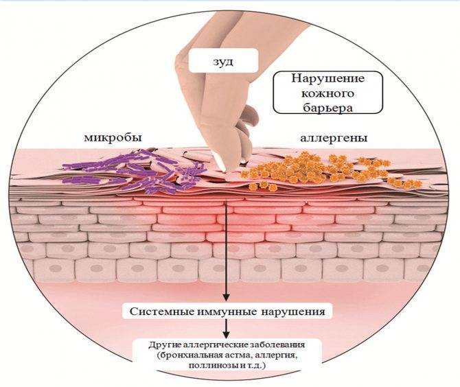 Дерматиты: виды, формы, лечение, симптомы дерматитов, народная медицина при лечении дерматитов и профилактика кожных заболеваний
