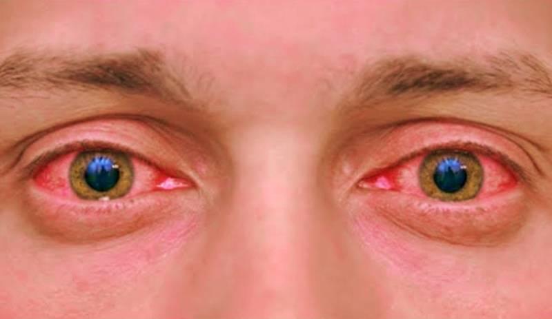 как снять покраснение глаз в домашних условиях