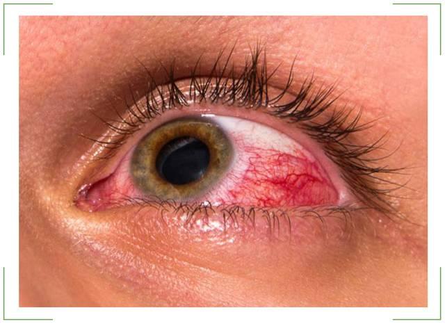 Механизмы развития, характерные симптомы и методы лечения закрытоугольной глаукомы