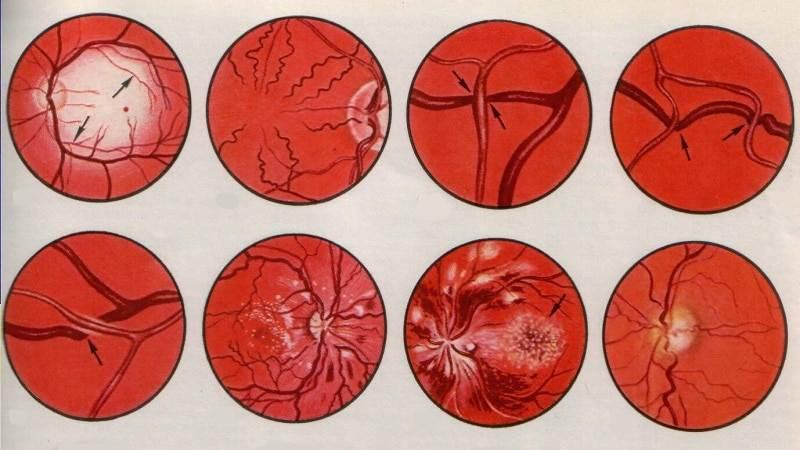 ангиосклероз сетчатки