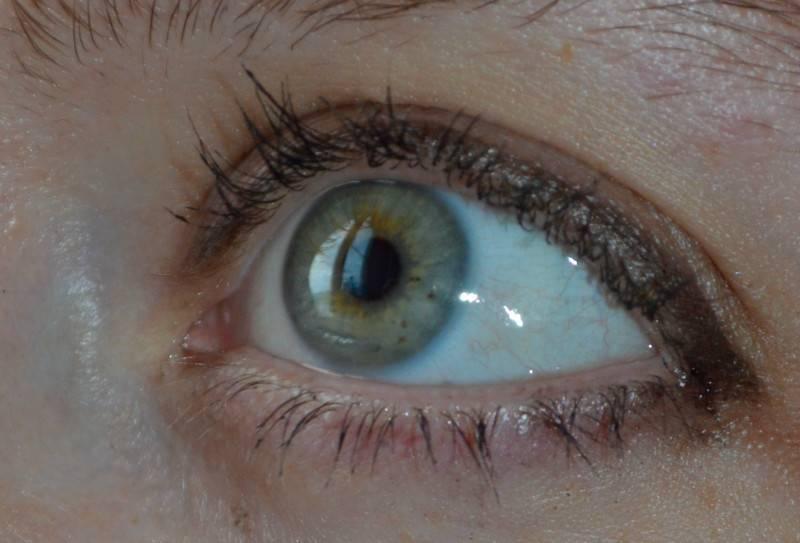 Ощущение пленки на глазу