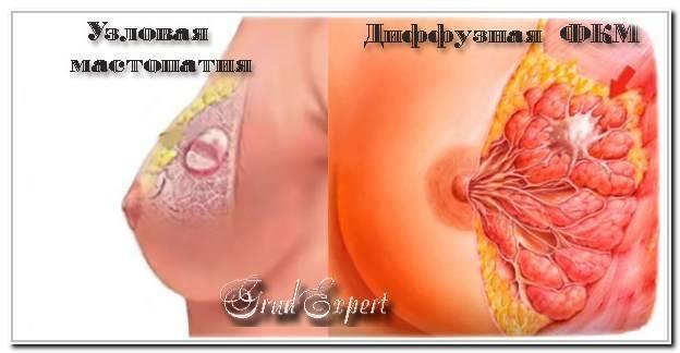 Отличие мастопатии от рака признаки