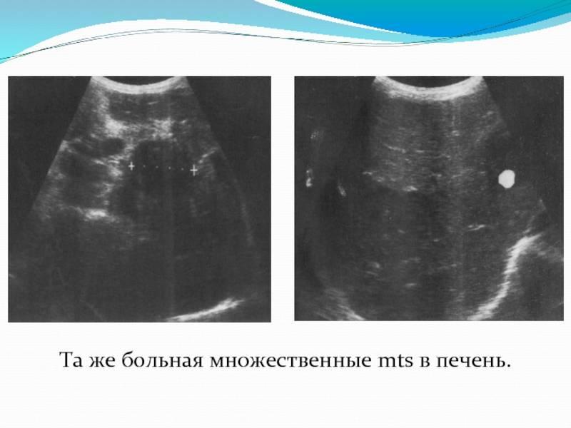 Рак легких с метастазами в печень: сколько живут люди, прогнозы, симптомы и лечение