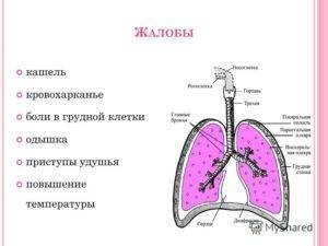 Кашель с болью в грудной клетке и температура симптомы
