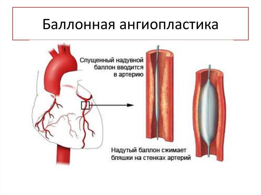 Баллонная ангиопластика сосудов со стентированием и без