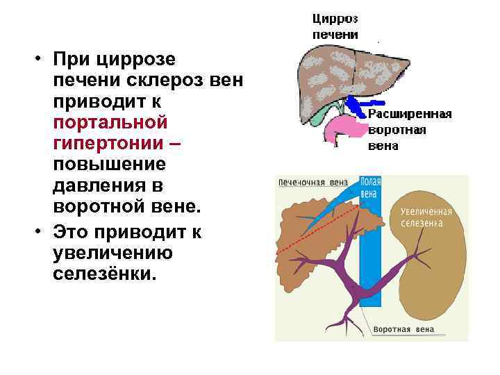 Какие могут быть осложнения цирроза печени