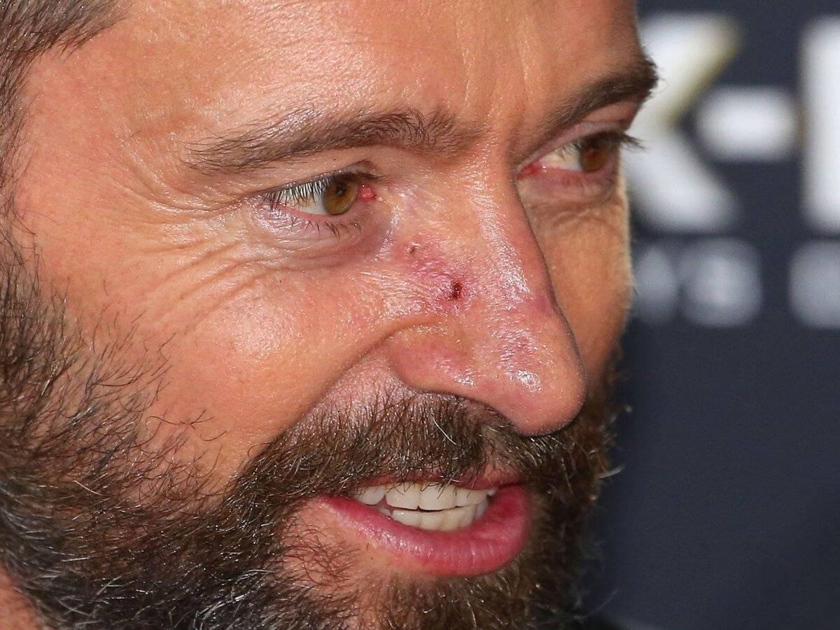 рак слизистой носа