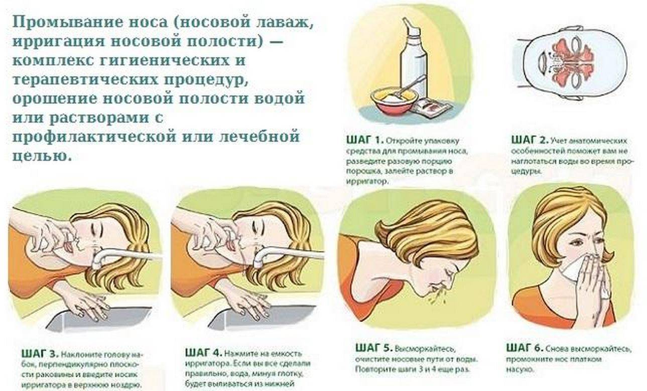 Промывание носа в домашних условиях