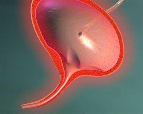 Геморрагический цистит – чем опасен и как его правильно лечить?