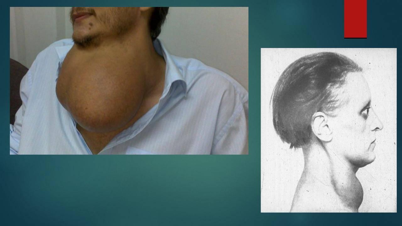 Увеличение щитовидной железы: симптомы, диагностика и лечение