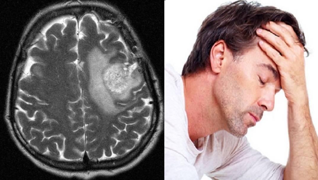 паразиты в мозгу