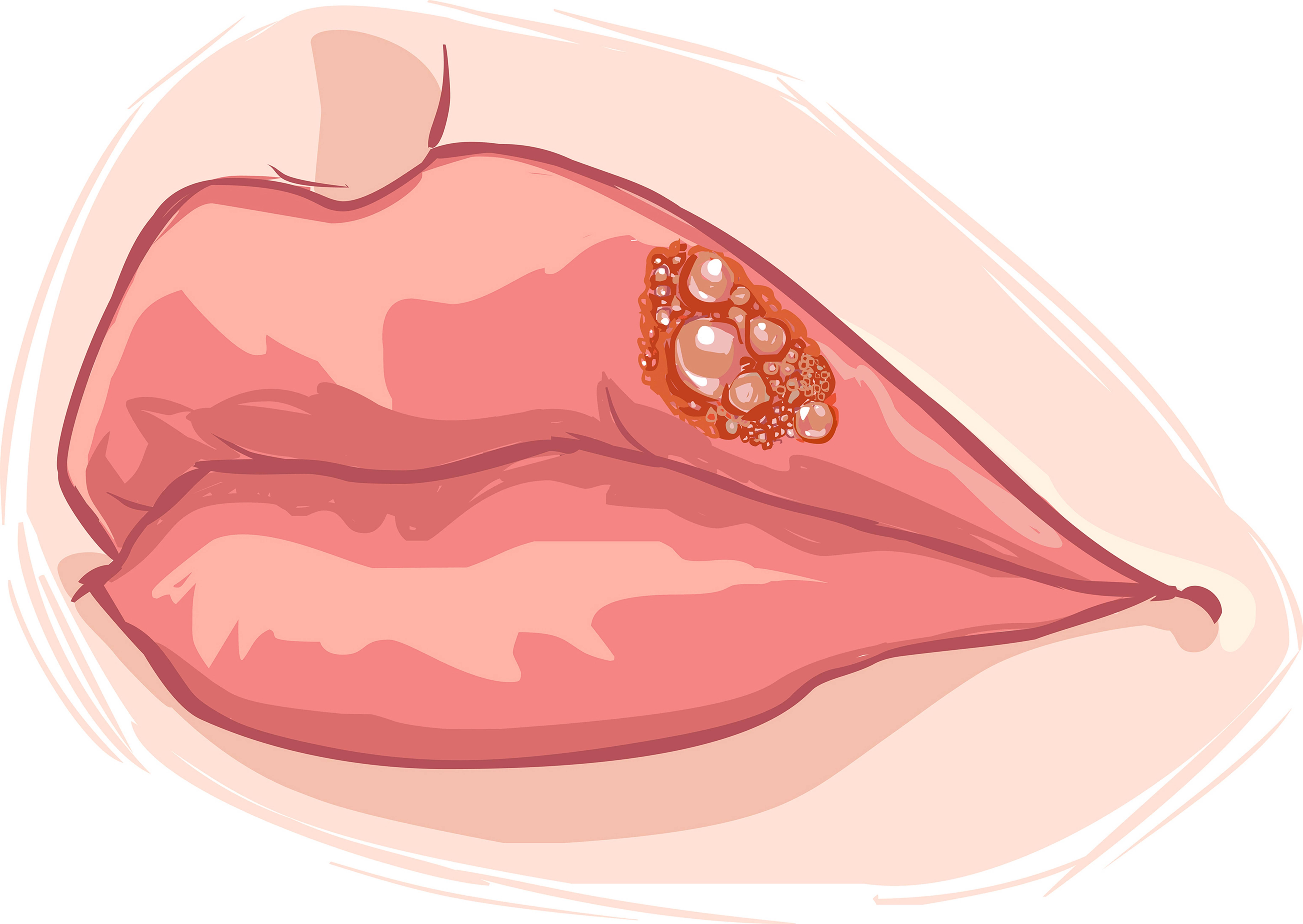 Диета при герпесе на теле: лечение опоясывающего лишая