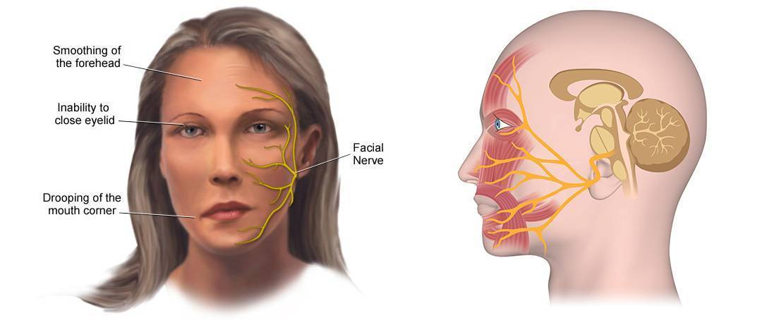 невриты тройничного нерва