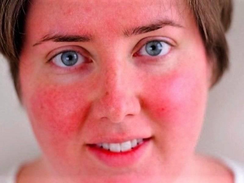 Солнечный дерматит у взрослых и детей