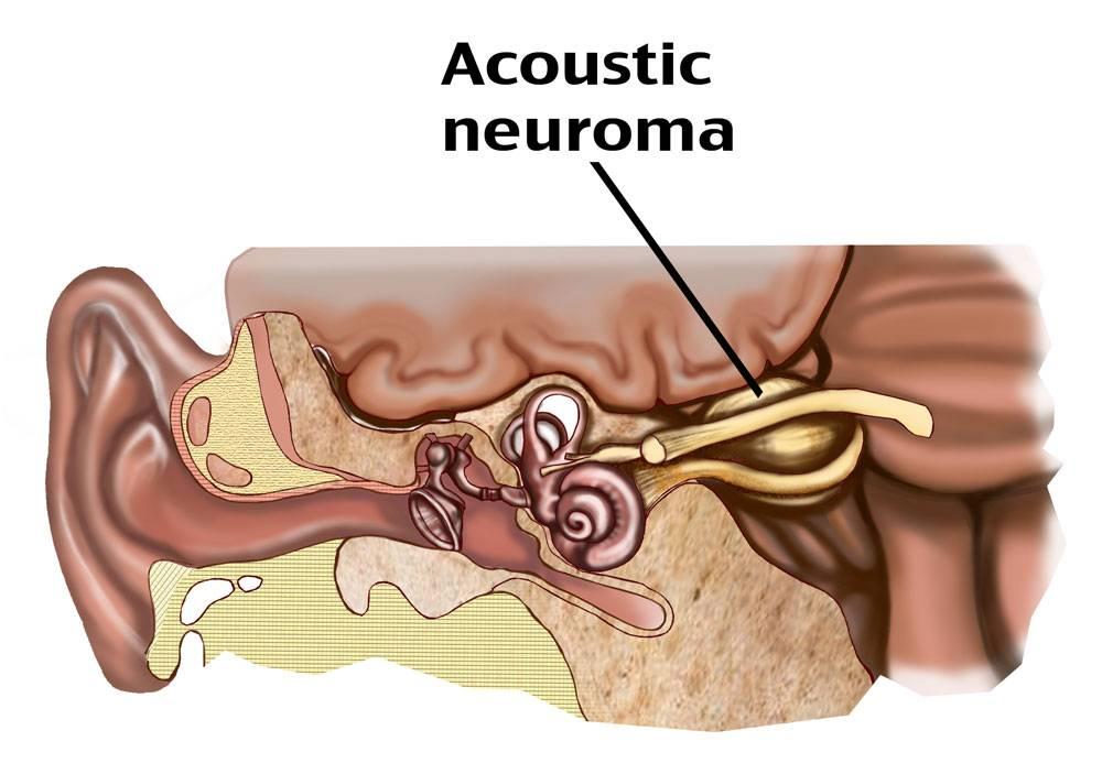 невринома слухового нерва симптомы лечение