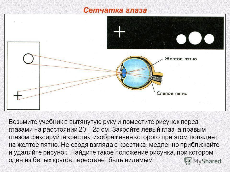 Черная точка в глазу: что это такое и чем опасно?