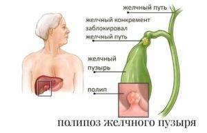 Лечение полипов в желчном пузыре народными средствами – топ-6 эффективных рецептов и секреты траволечения