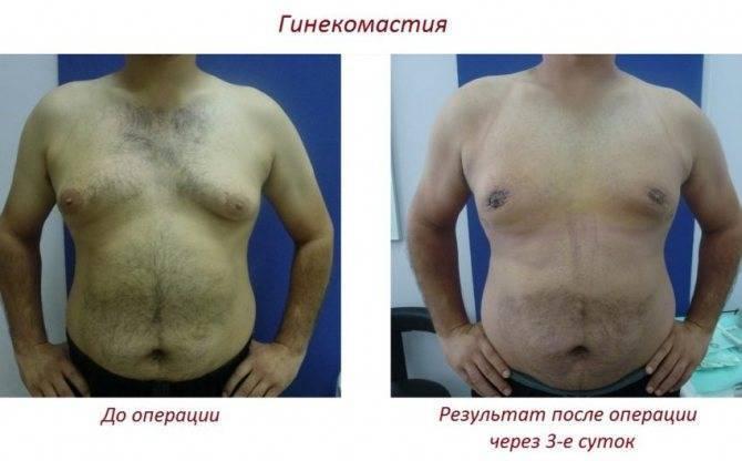 Препараты для лечения гинекомастии у мужчин без операции