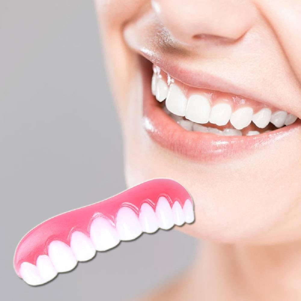 исправление зубов винирами
