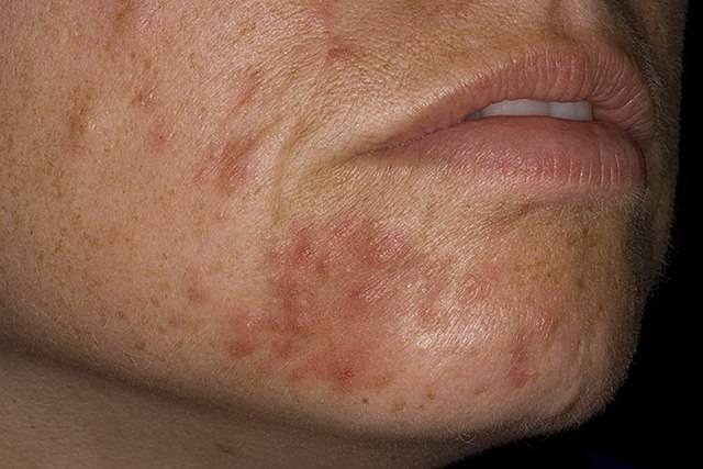 мазь от солнечного дерматита