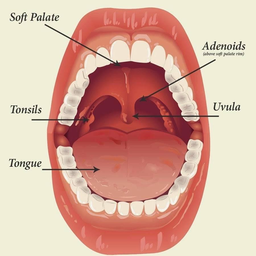 Фото увеличенных миндалин у детей в горле
