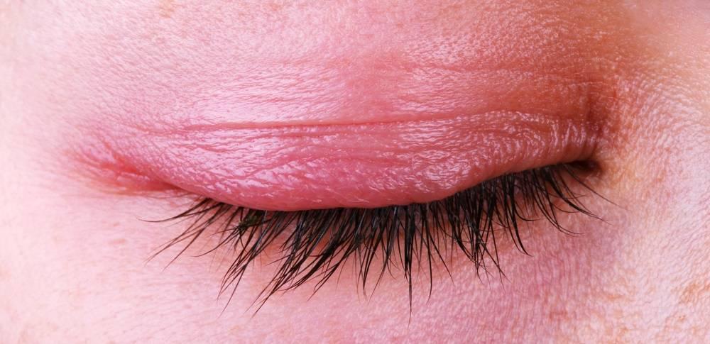 Блефарит симптомы и лечение у взрослых фото