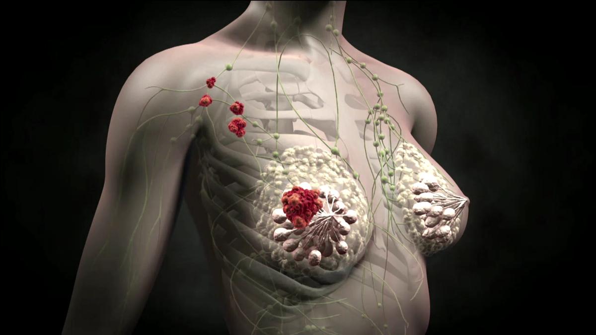 заболевание молочных желез у мужчин