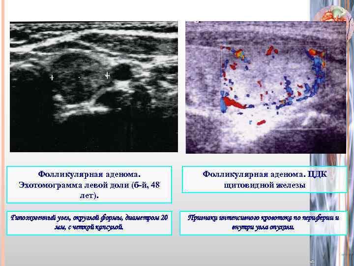 Гипоэхогенное образование щитовидной железы что это такое