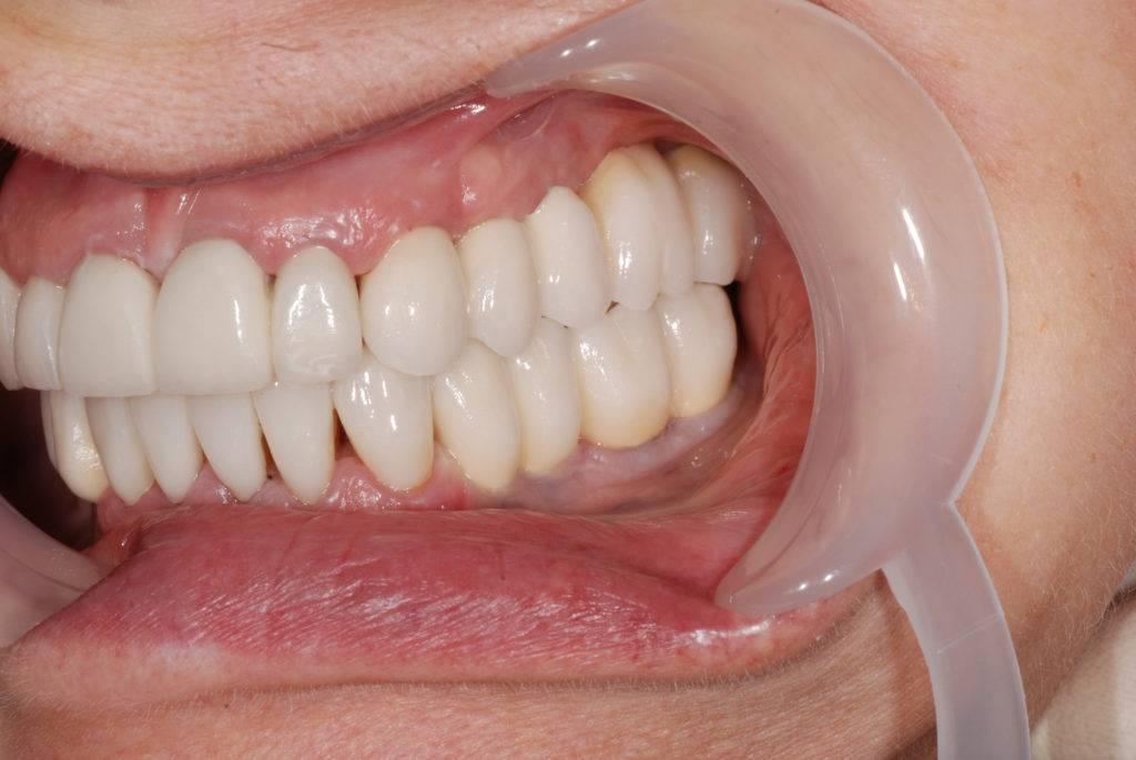 Препарирование зубов под металлокерамическую коронку— видео про обточку зубного ряда под металлокерамику
