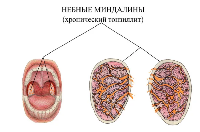 Что такое тонзиллит, чем опасен, как лечить? острый, хронический тонзиллит – симптомы