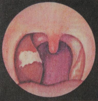 О некротической ангине: особенности лечения и возбудители