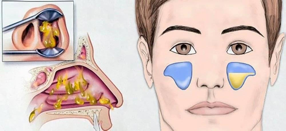 Опасные осложнения и последствия гайморита в острой и запущенной форме