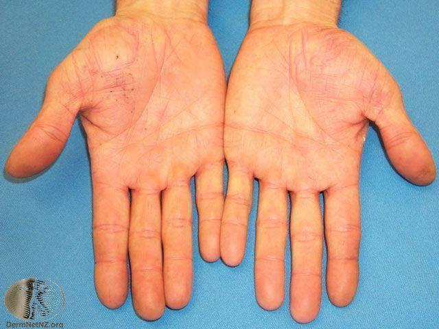 Лечение ладонно-подошвенной формы псориаза. опыт форума « псориаз? давайте лечиться вместе.