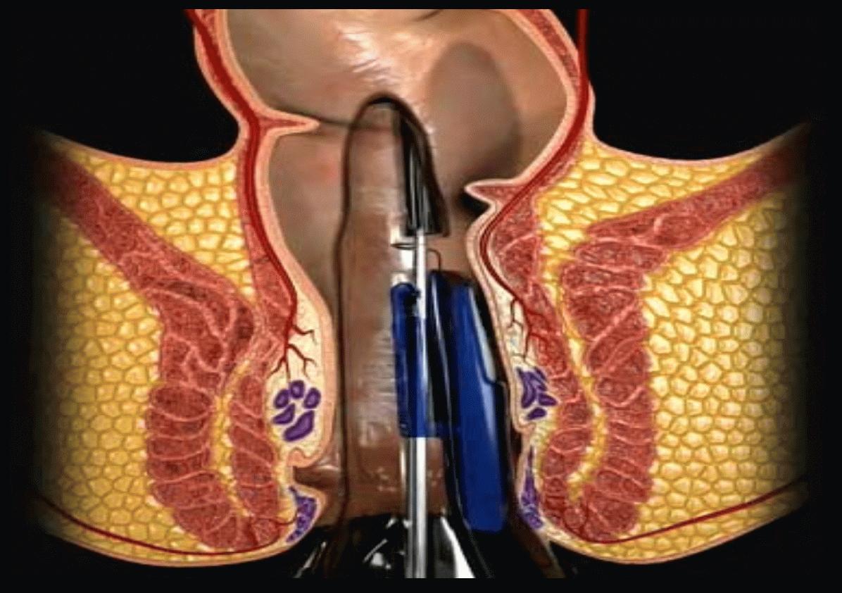 лечение тромбов геморрой