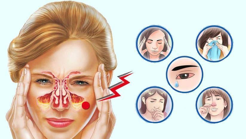 Аллергический гайморит: симптомы и лечение