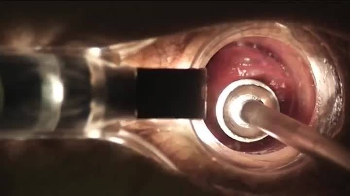 лигатор геморроидальных узлов