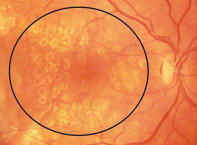 Что такое периферическая дистрофия сетчатки — виды и лечение