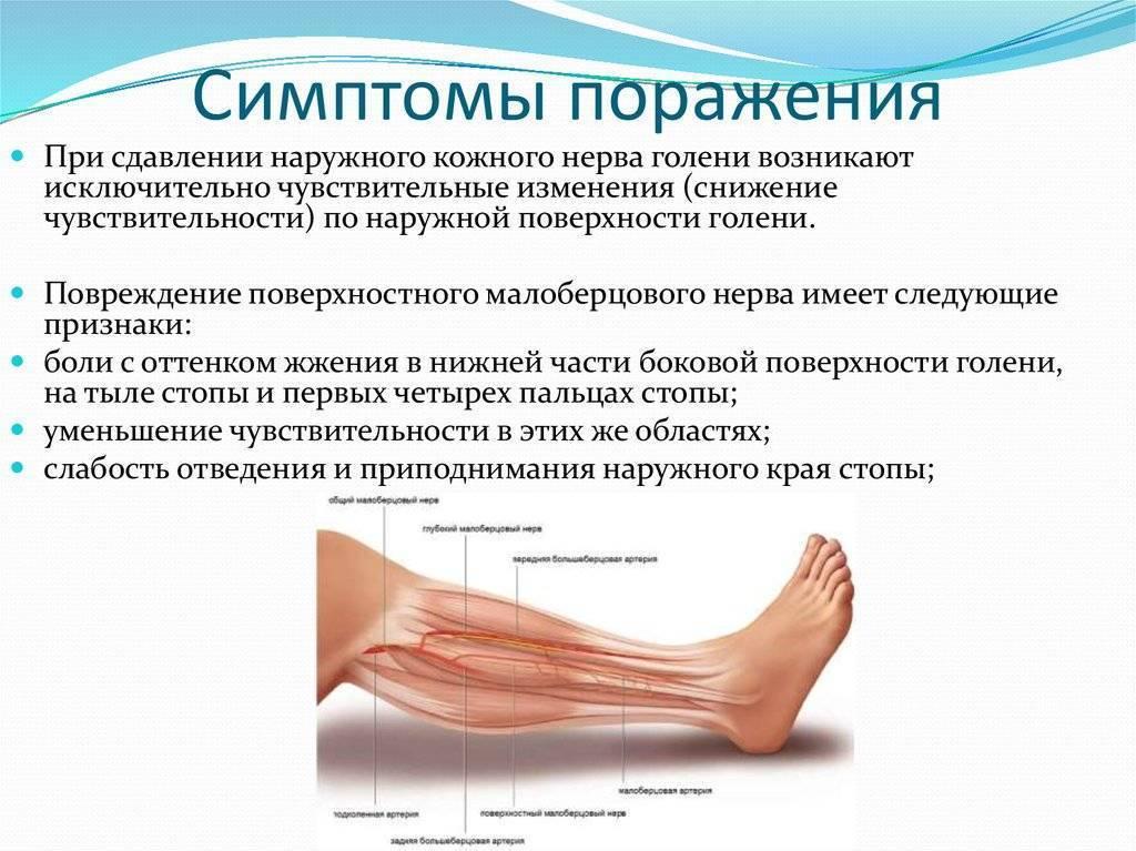 Невропатия малоберцового нерва : причины заболевания, основные симптомы, лечение и профилактика