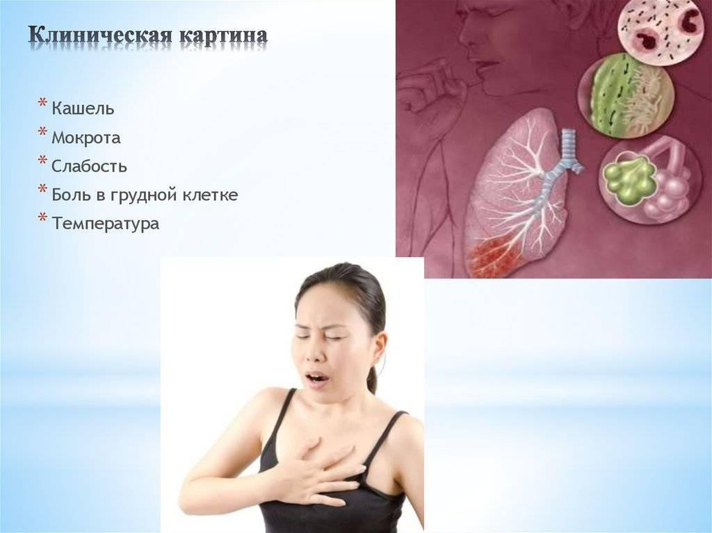 Если при кашле болит в грудной клетке — что это может быть и что делать