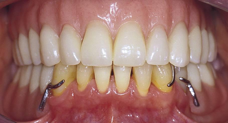Особенности бюгельного протезирования нижней челюсти