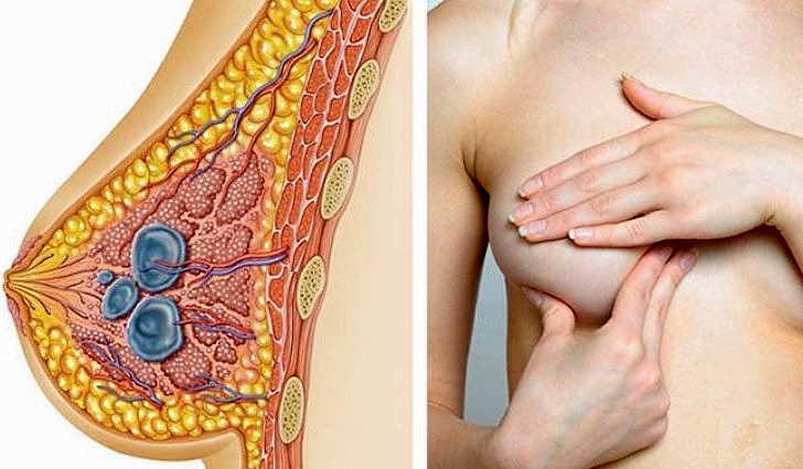 Заболевания молочных желез: коварная мастопатия    эко-блог