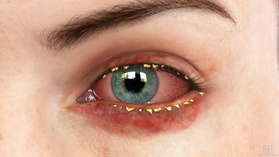 как вылечить блефарит глаз