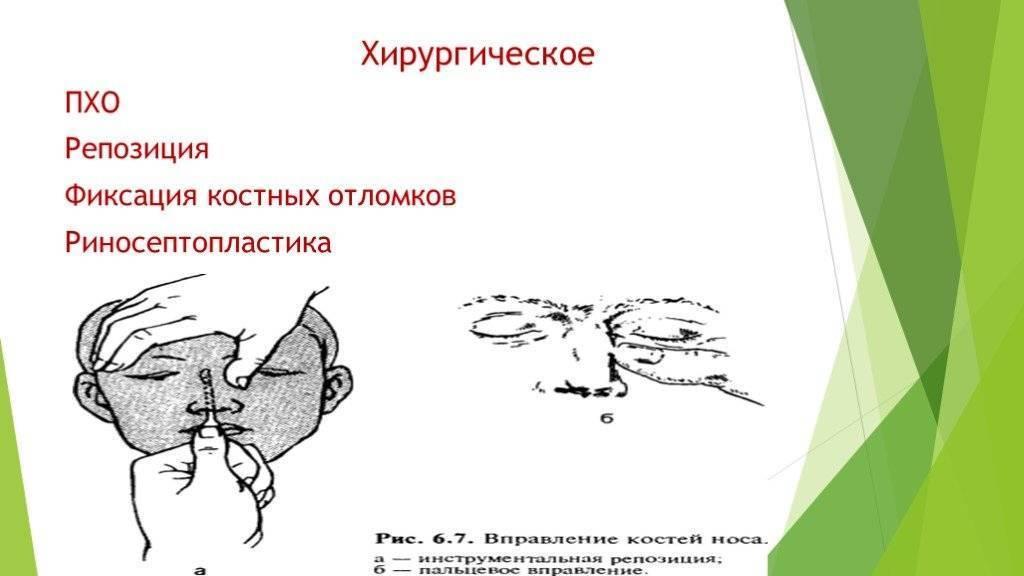 Репозиция костей носа после перелома: показания к операции, ход, реабилитация
