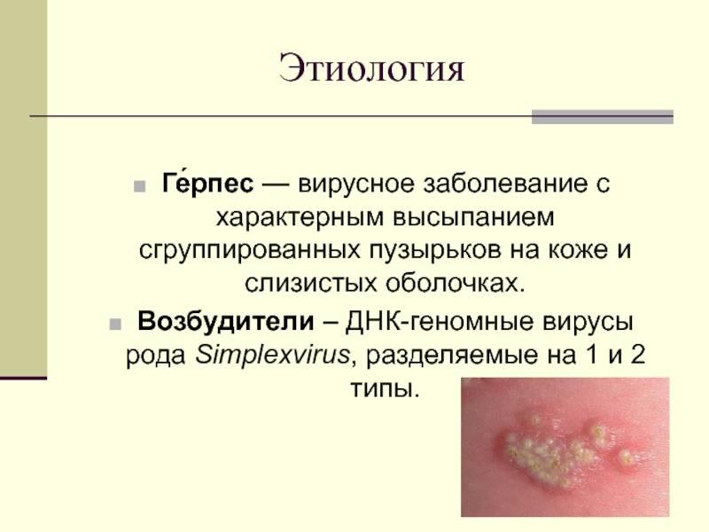 Генитальный герпес у мужчин и женщин на половых органах